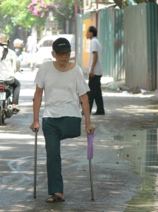 Getting along somehow - a Vietnamese man has only 1 leg and 2 sticks.